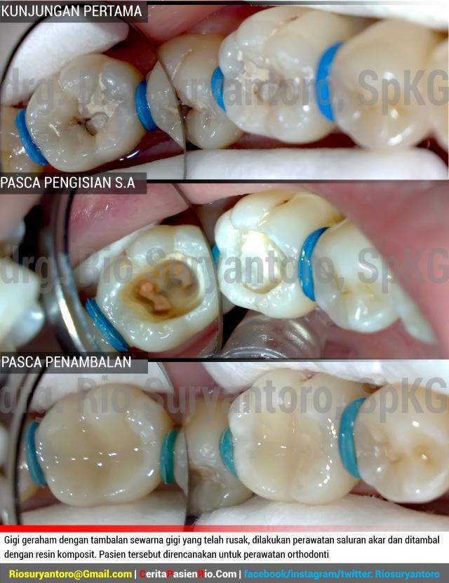 gambar 3. Gigi geraham dengan tambalan sewarna gigi yang telah rusak, dilakukan perawatan saluran akar dan ditambal dengan resin komposit. Pasien tersebut direncanakan untuk perawatan orthodonti