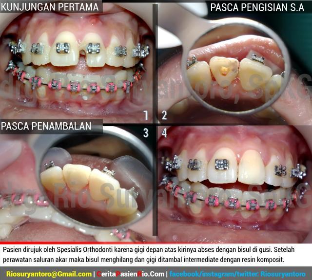 gambar 4. Pasien dirujuk oleh Spesialis Orthodonti karena gigi depan atas kirinya abses dengan bisul di gusi. Setelah perawatan saluran akar maka bisul menghilang dan gigi ditambal intermediate dengan resin komposit.