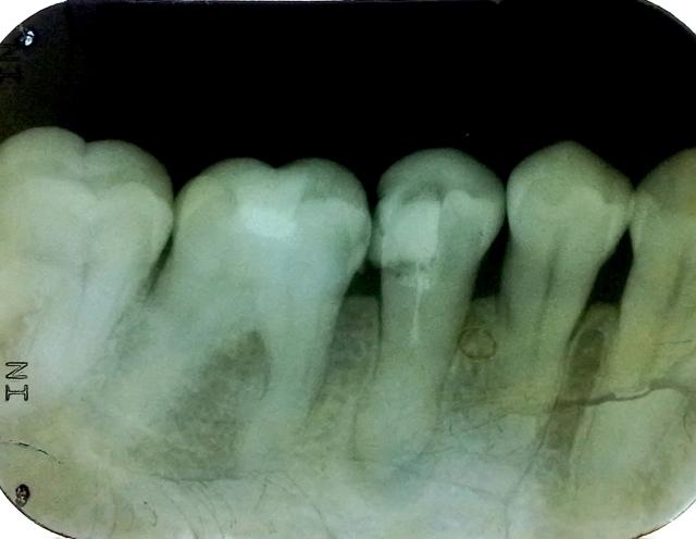 dokter gigi rio suryantoro spesialis konservasi gigi drg spkg 000
