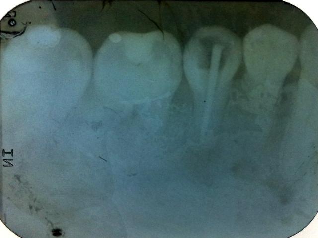 dokter gigi rio suryantoro spesialis konservasi gigi drg spkg 001