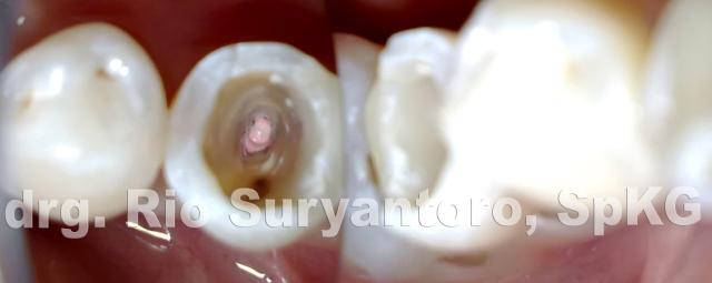 dokter gigi rio suryantoro spesialis konservasi gigi drg spkg 10