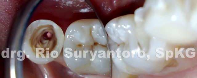 dokter gigi rio suryantoro spesialis konservasi gigi drg spkg 13