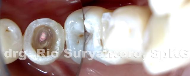 dokter gigi rio suryantoro spesialis konservasi gigi drg spkg 9