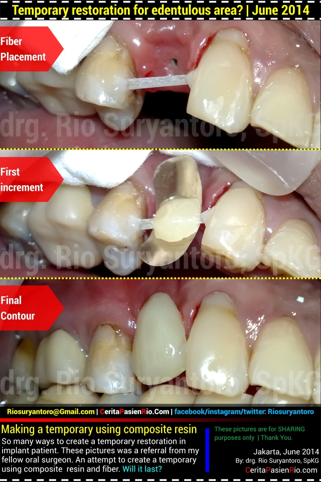 dokter gigi rio suryantoro spesialis konservasi gigi bridge