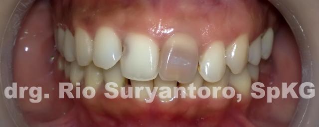 gambar 1. keadaan gigi 21 yang berubah warna.