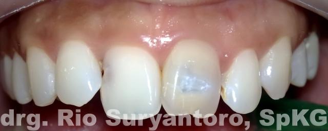 gambar 8. keadaan di kunjungan kedua, warna gigi lebih cerah.