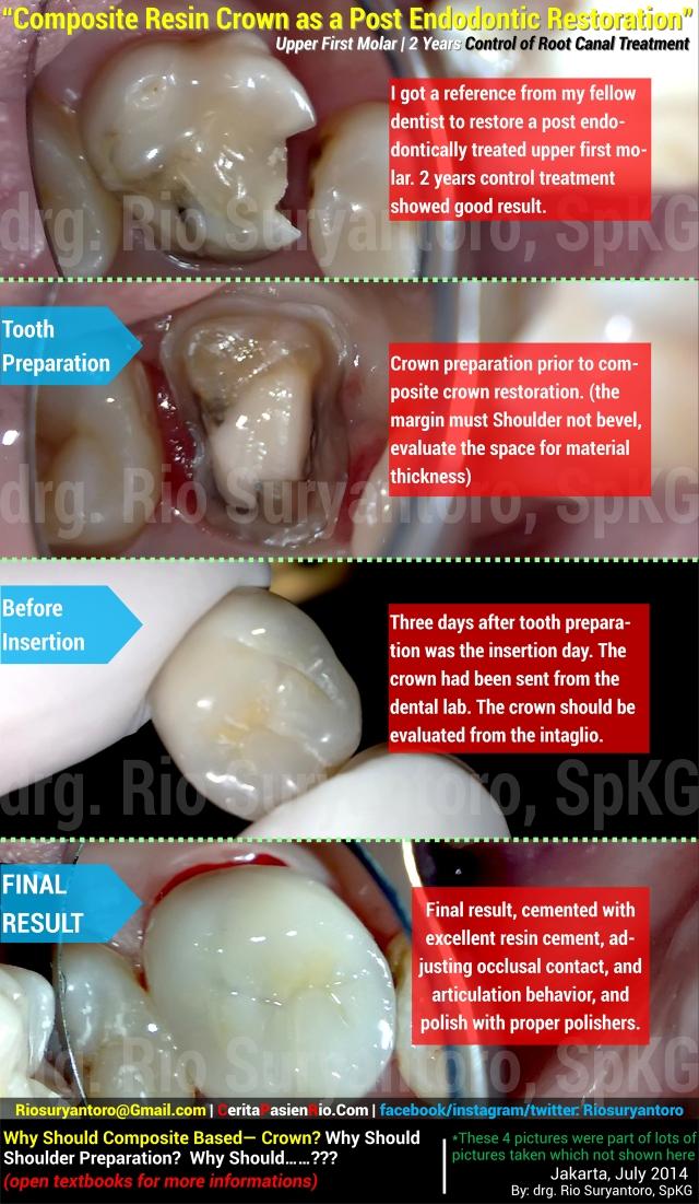 (1280) all care 23 juli Olivia CROWN RK post endo pada gigi pedo dokter gigi rio spesialis konservasi gigi