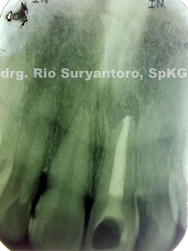 gambar 11. Hasil pengisain saluran akar gigi 21.