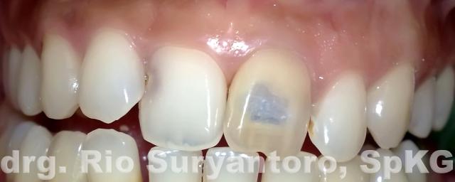 gambar 13. keadaan gigi saat datang di kunjungan ketiga,. tampak ada warna kehitaman di bagian servikal gigi.