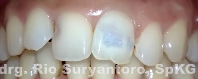 gambar 16. keadaan gigi setelah di bleaching. (tampilan bukal)