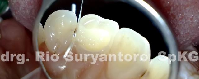 gambar 21. letakkan warna dentin setebal dentin saja, jangan terlalu tebal karena bisa mengganggu estetis.