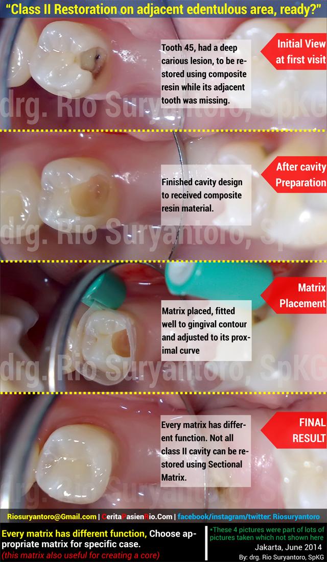 (640 px) IBU XX 25 juni 2014 gigi 45 dokter gigi rio spesialis konservasi gigi