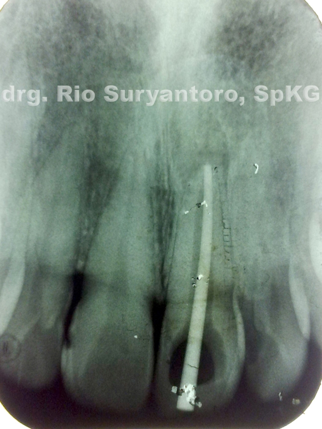 gambar 6. Foto Ro dental Gigi 21, Kon Guttap Utama tepat di ujung apeks. tampak ada lesi periapikal.