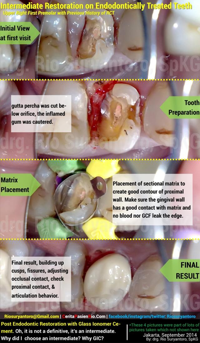 estetika september pasca PSA GIC rio spesialis konservasi gigi