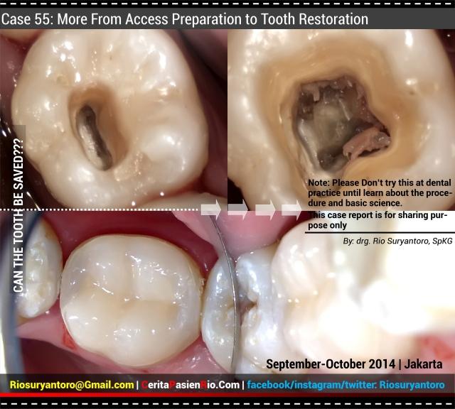 pembukaan kasus 55, cerita pasien rio spesialis konservasi gigi