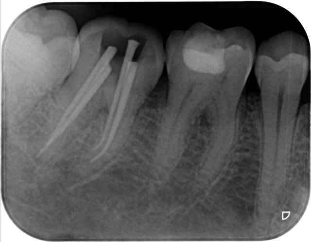 gambar 13. Foto Rontgen dental gigi.