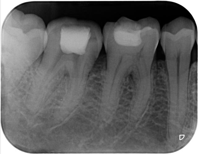 foto awal dokter gigi rio perawatan saluran akar tambalan sewarna gigi