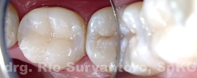 gambar 19. restorasi menggunakan warna dentin dan enamel dari Z350XT sebelum pemolesan, perhatikan bentuk cusp dan grooves juga pit, semua dibentuk dengan plastis filling.
