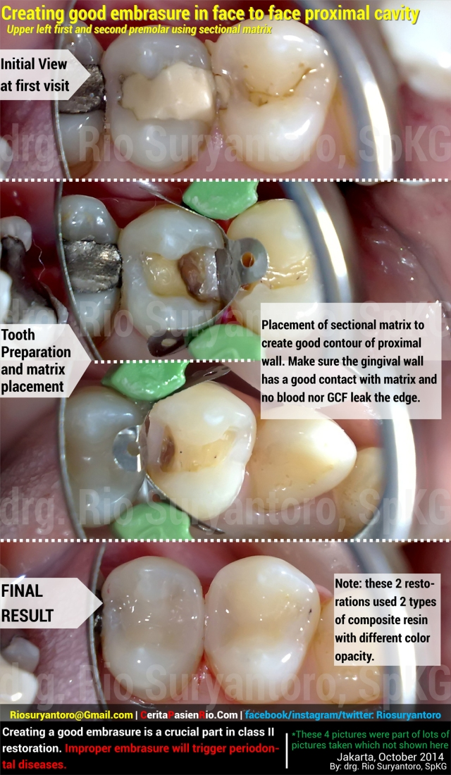 oktober 2 2014 her mayapada dokter rio suryantoro spesialis konservasi gigi