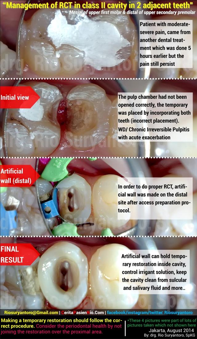 tambalan menyatu 11 08 2014 pedo dokter gigi rio spesialis konservasi gigi