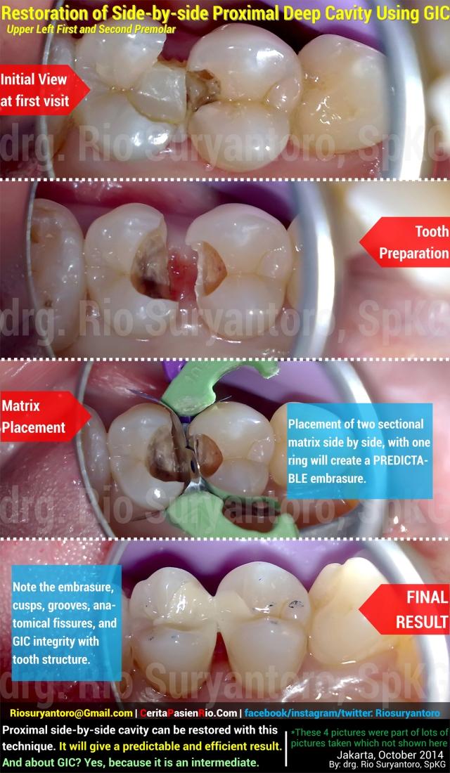 dokter gigi rio suryantoro spesialis konservasi gigi part 3