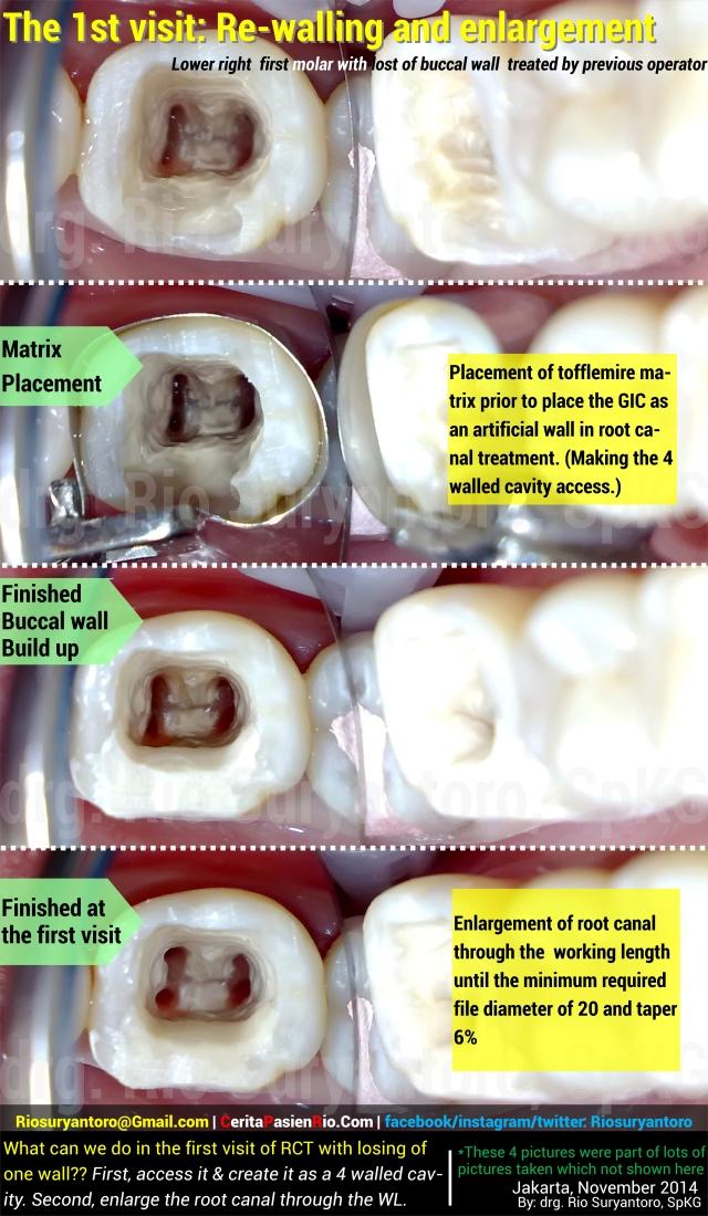 dokter gigi rio suryantoro spesialis konservasi gigi part 2