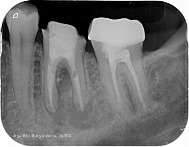 gambar 26. nah.. sekarang voidnya sudah hilang ya.. jadi yakin untuk bisa merestorasi gigi tersebut.,
