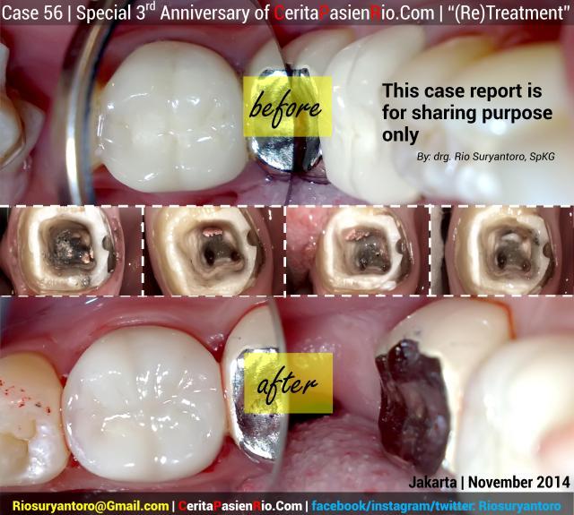 pembukaan kasus 56 FINAL