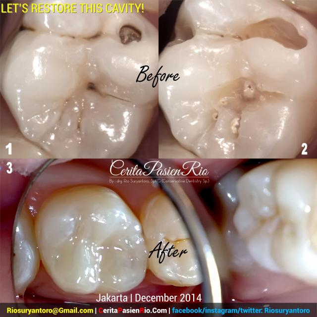 dokter gigi rio spesialis konservasi gigi jakarta indonesia perawatan saluran akar endodontic protaper 3m tambalan estetik kosmetik pulpa dentin email (12)