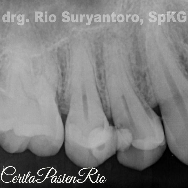 gambar 2. tampak ada pelebaran ruang periodontal di bagian apikal.