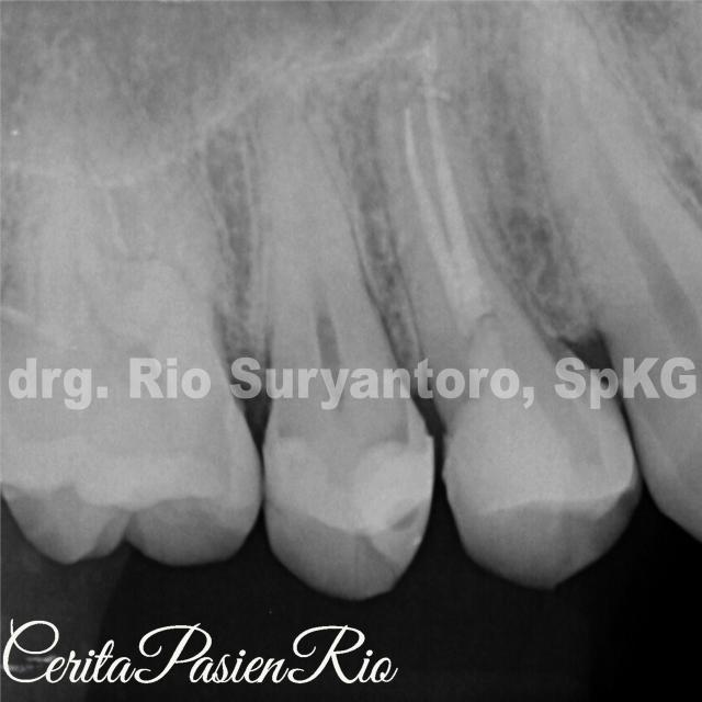 gambar 18. foto x-ray pengisian saluran akar dengan restorasi GIC diatasnya.