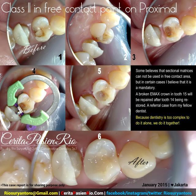 dokter gigi rio suryantoro spesialis konservasi gigi reparasi gigi 14