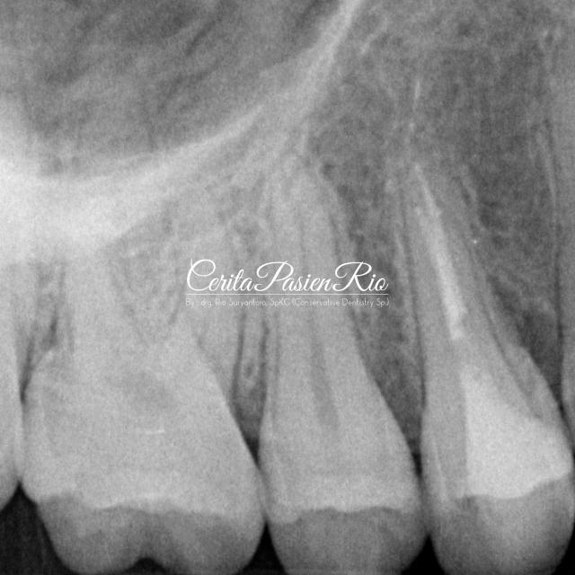 gambar . foto xray menunjukkan tepi marginal yang baik antara gutta percha, resin komposit, dan dentin. juga tampak badan (body) tambalan yang homogen.