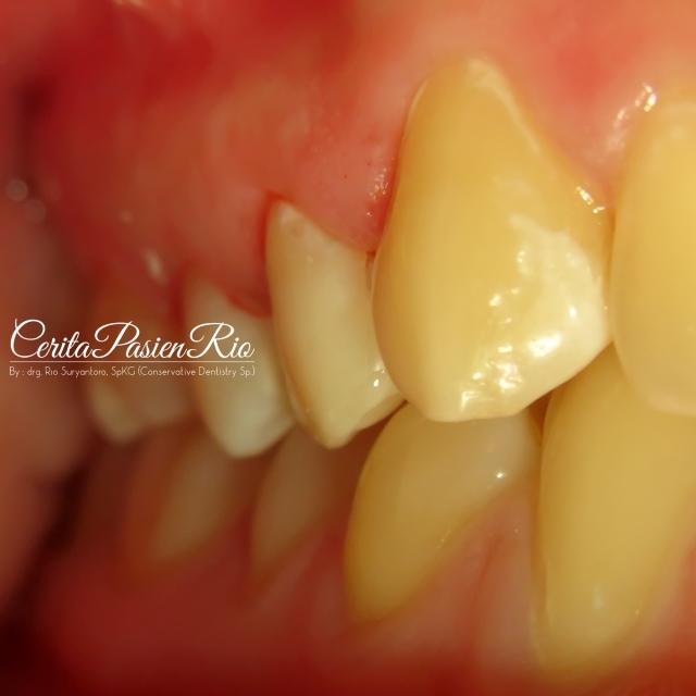gambar . foto gigi geligi saat rahang atas beroklusi dengan rahang bawah.