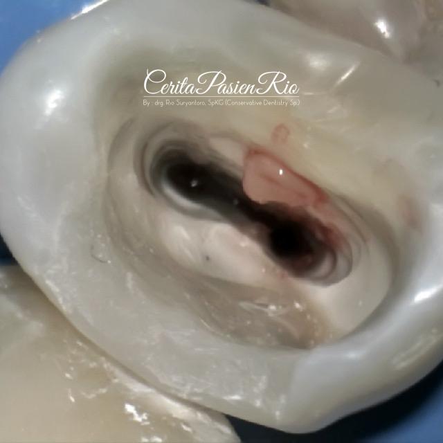 gambar 8. penjajakan saluran akar dengan pathfile (dentsply sirona)