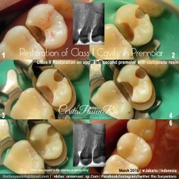 dokter gigi spesialis konservasi gigi bagus di jakarta