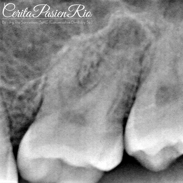 dokter gigi spesialis konservasi gigi terbaik di jakarta indonesia perawatan saluran akar tambalan resin komposit 2