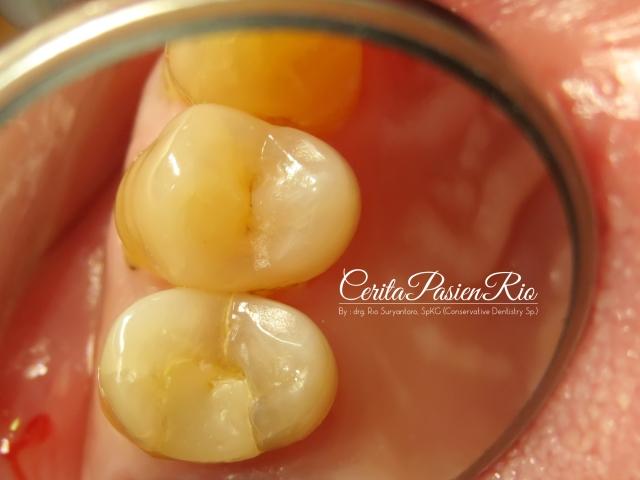 gambar 1. keadaan gigi secara klinis saat pertama kali datang.