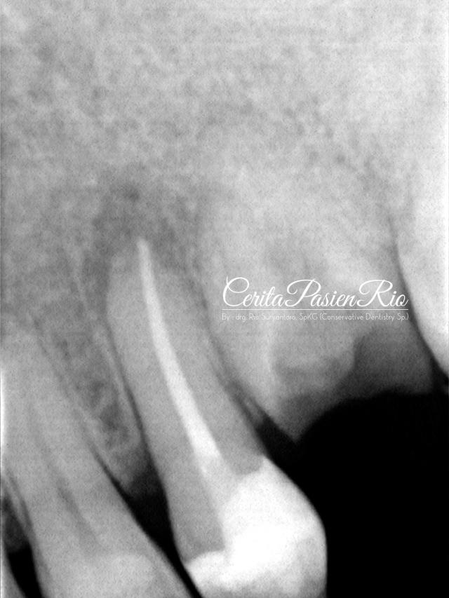 gambar 12. keadaan setelah dilakukan perawatan endodontik. tampak marginal integriti yang baik antara resin komposit - gutta percha - dentin.