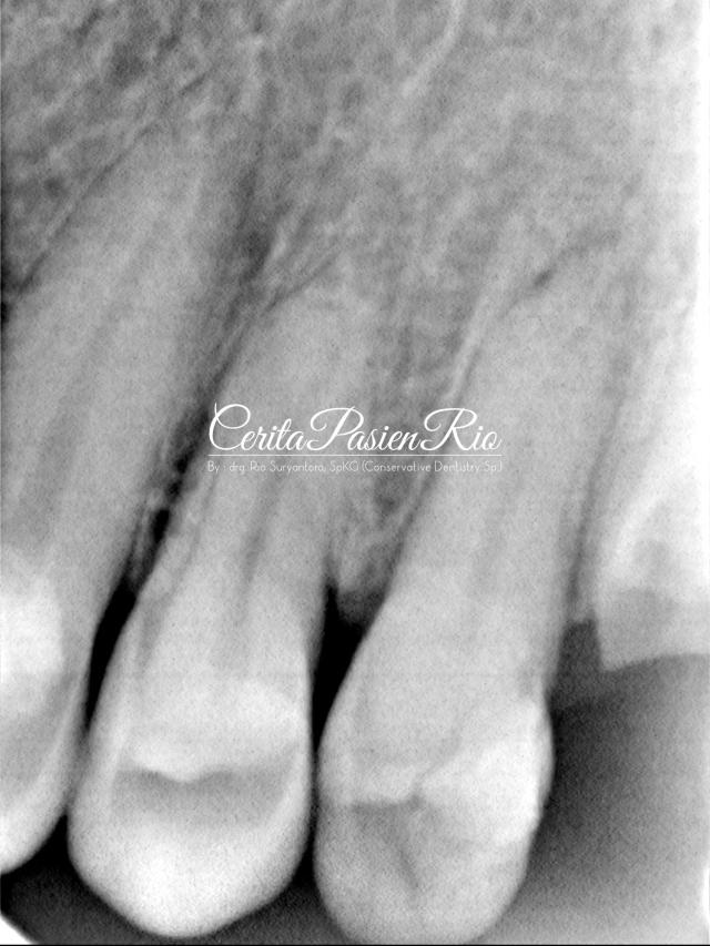 gambar 2. xray pasien saat pertama kali datang.