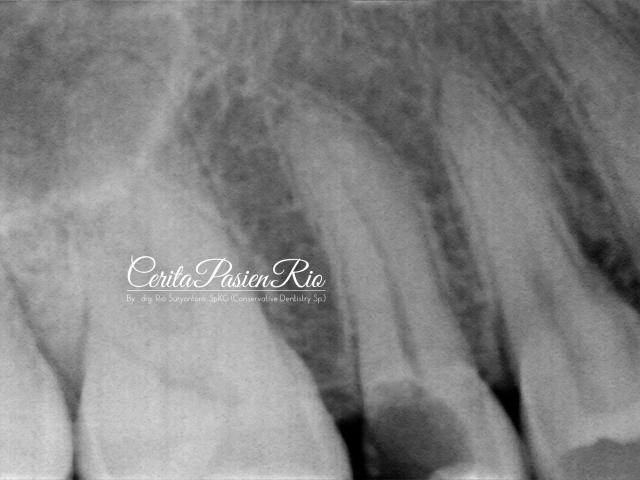 gambar 3. foto rontgent dental menunjukkan adanya kehilangan jaringan gigi yang cukup banyak dimulai dari bagian proksimal distal.