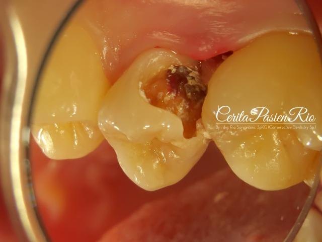 gambar 2. keadaan gigi 15 dilihat dari bukal. terlihat kavitas kelas 2, dan keadaan gusi dan tulang alveolar yang memucat.