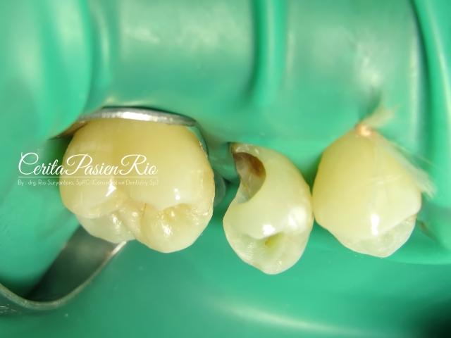 gambar 7. pemasangan rubber dam pada gigi 14, 15, dan 16. memeriksa isolasi yang baik sebelum pembuatan dinding distal.