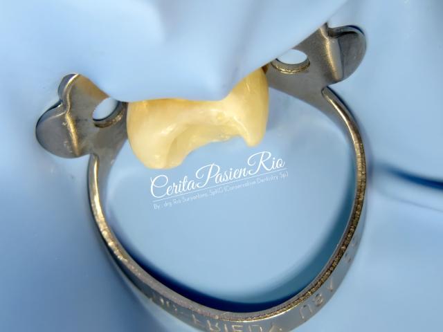 gambar 11. saya mengganti multiple tooth isolation jadi single tooth isolation sebelum memulai prosedur endodontik.