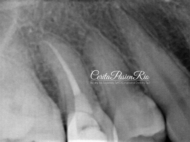 gambar 21. evaluasi radiograf pasca pengisian saluran akar. tampak integrasi tepi tambalan resin komposit kelas 2 yang baik, coronal seal yang juga beradaptasi yang baik dengan gutta percha dan gigi.