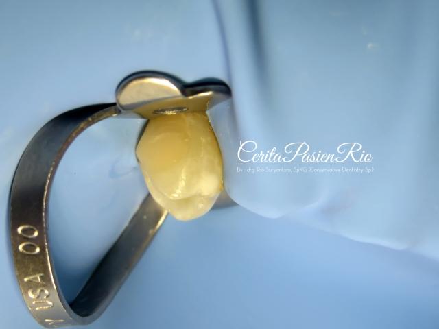 gambar 22. pemasangan isolasi pada gigi premolar dengan rubber dam (hu friedy rubberdam clamp dan nictone rubber dam sheet)