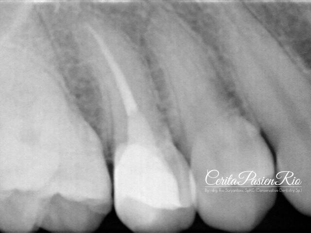Gambar 27. evaluasi radiograf dengan foto xray dental yang dilakukan pasca penambalan. tampak integritas tepi resin komposit yang rapat dan homogenitas dari restorasinya yang padat.